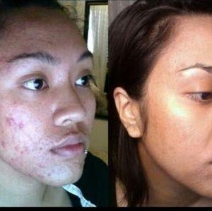 Magnificent kojic acne removing soap